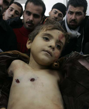 Shot Gazan Child